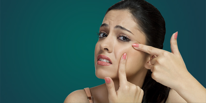 how to cure pimple