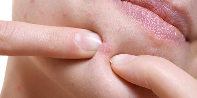 chin acne