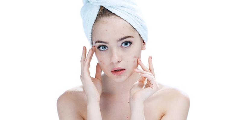 skin care routine for acne