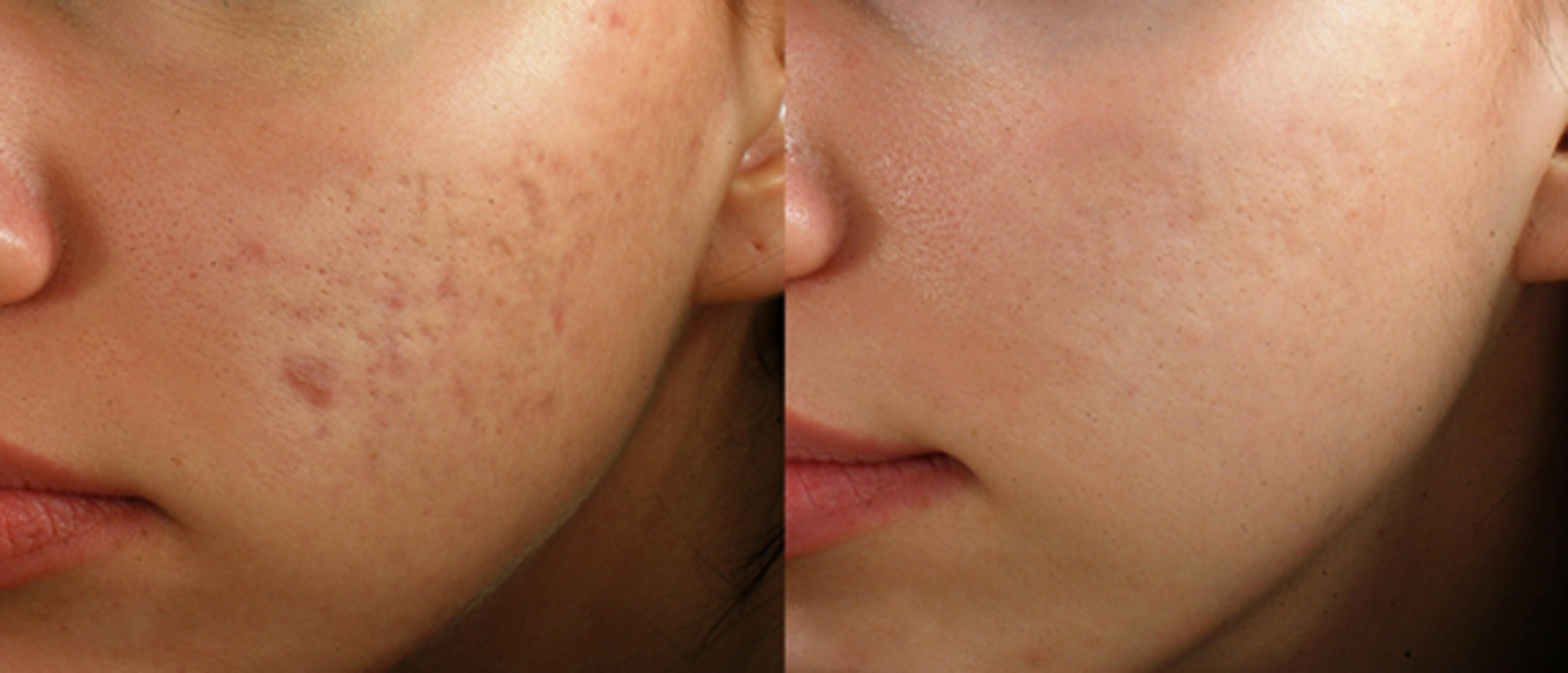 before after acne scars