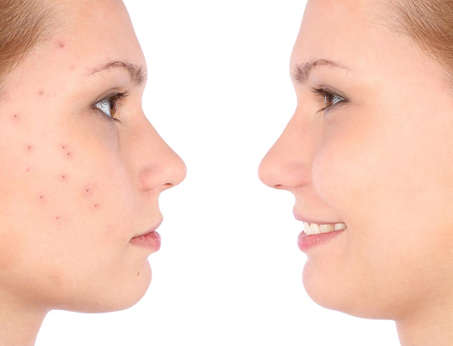 acne on female face