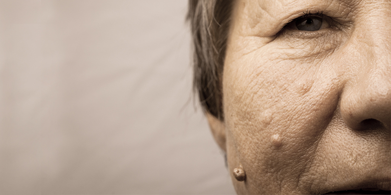 Skin warts on face and neck Wart treatment face