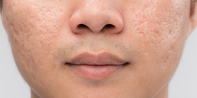 acne scar removal treatment cost in chennai