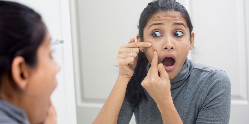 powerful home remedies for acne