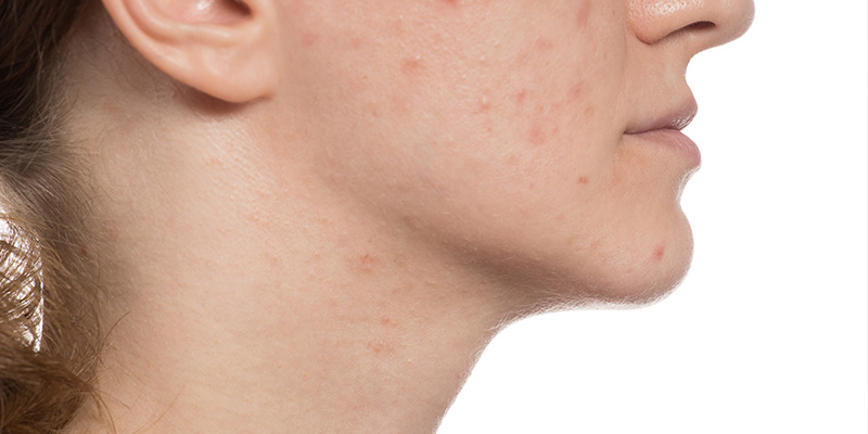 chemical peels for pimples and acne scars