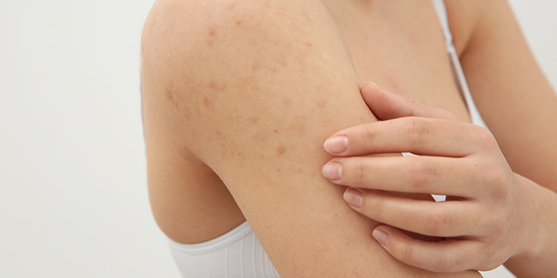 What Is Keratosis Pilaris - Causes, Types And Treatments