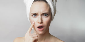 pimple treatment in hyderabad