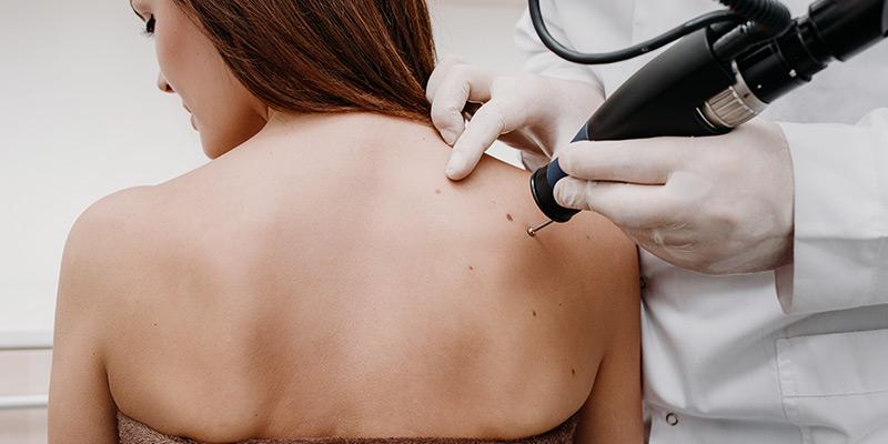 age spots treatments
