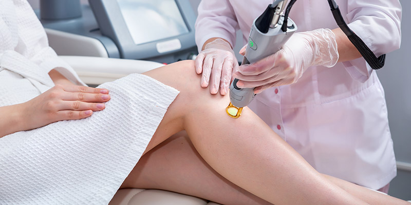 types of laser hair removal machines