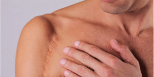 7 Best Treatments to Fade Ice Pick Scars – Procedure and Cost