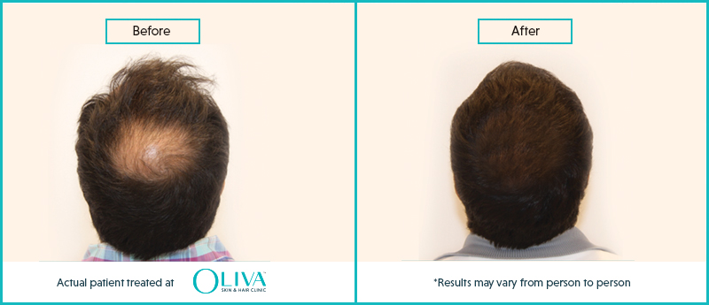 prp hair treatment results