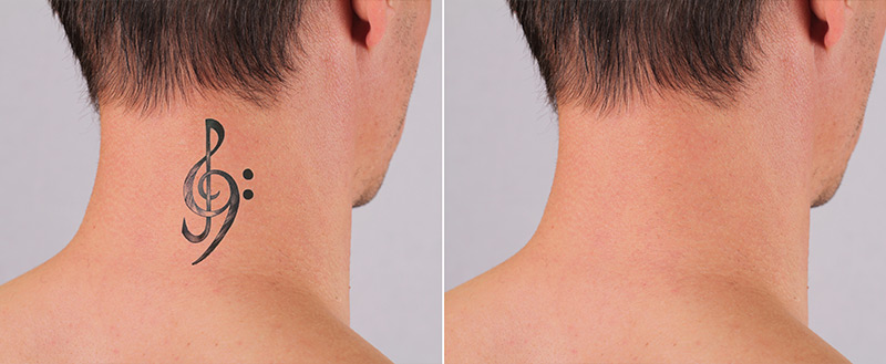 before and after tattoo removal in chennai