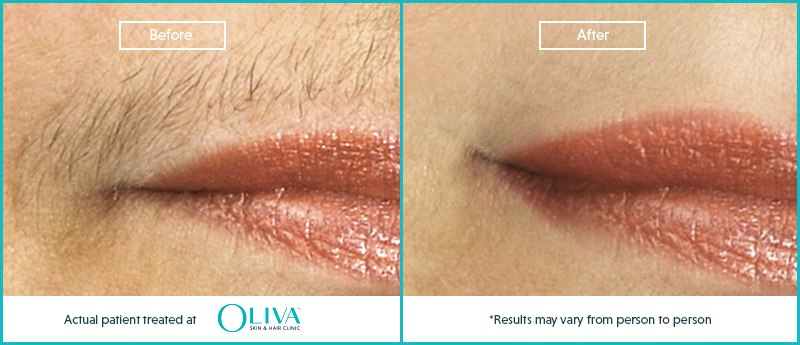 upper lip laser hair removal before and after