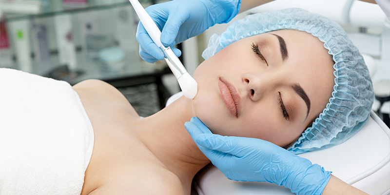 chemical peels for milia