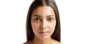 nodular acne