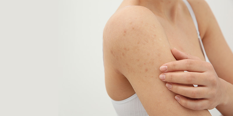 How To Get Rid Of Body Acne Scars Permanently