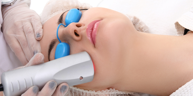 derma roller for acne scars