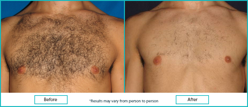 laser chest hair removal before and after results