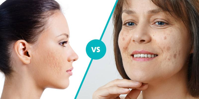 pimple marks vs dark spots