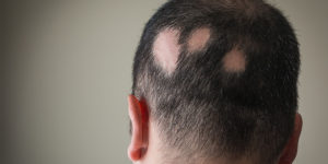 alopecia areata treatment