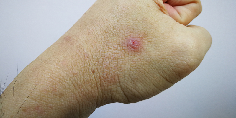 what is papule acne