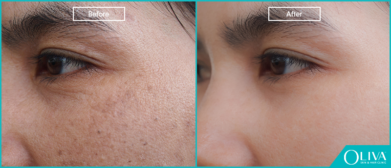 skin rejuvenation before after