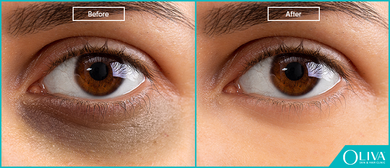 How To Get Rid Of Dark Circles Under The Eyes: Treatmen & Cost