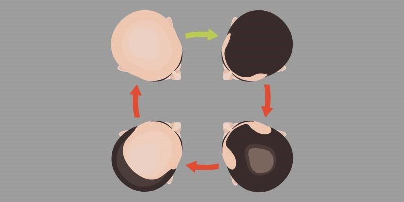 Male Pattern Baldness Symptoms