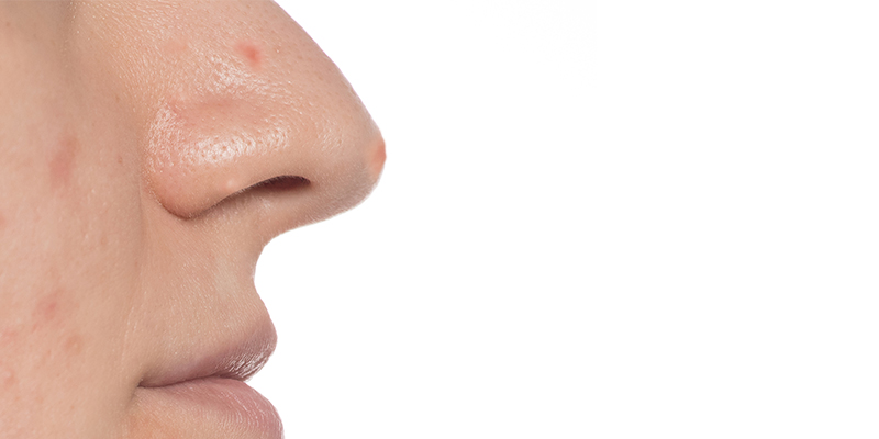 pimples on nose