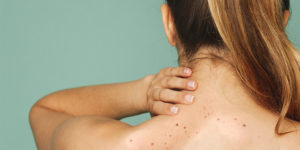 Black Spots On Back And Neck