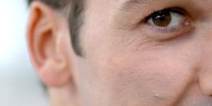 Bumps On Face Treatment