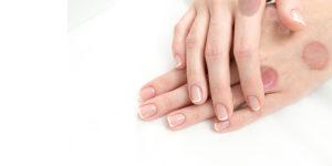 lichen planus treatment