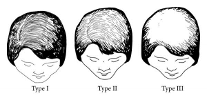 1. Thinning of the hair in the crown area