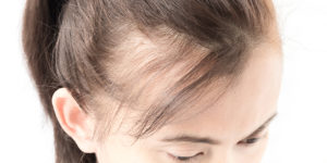 lupus hair loss