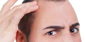 temple hair loss