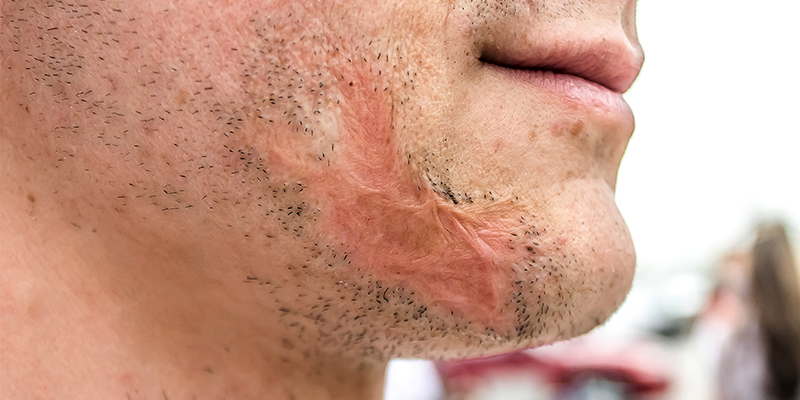 How To Remove Accident/Injury Scars On Face?
