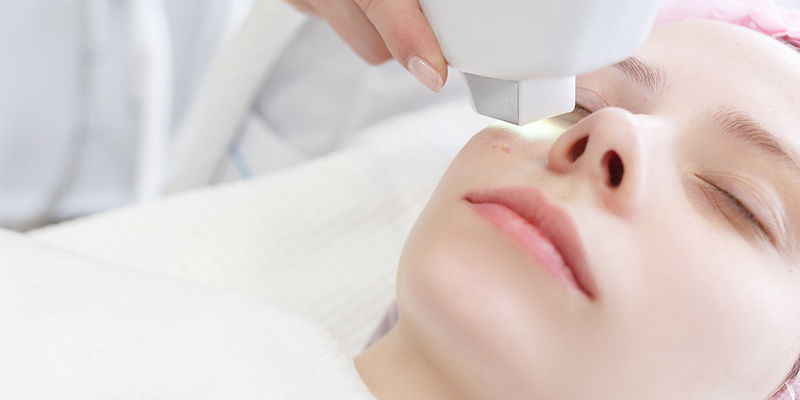 does laser acne scar removal work