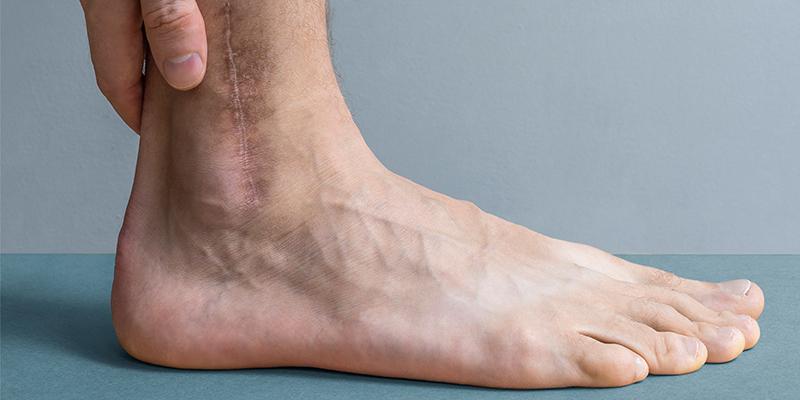 scars on legs