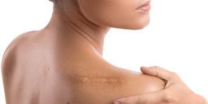 wound scar