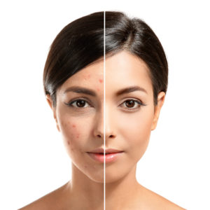 What Is Actinic Keratosis And How To Treat Them