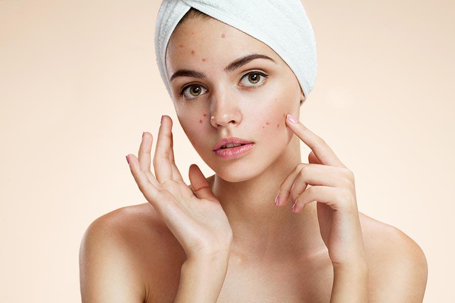 anti acne diet
