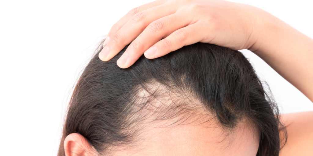 hair loss due to weight loss