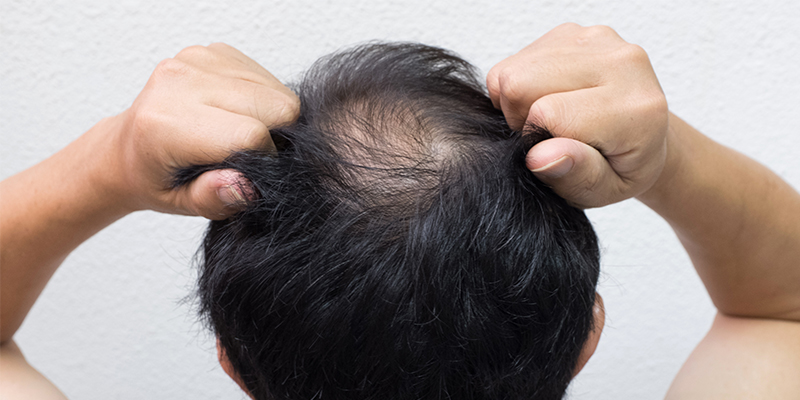 types of alopecia