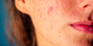 How to Reduce Redness from Acne Scars?