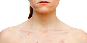 What Is Skin Picking Disorder Excoriation