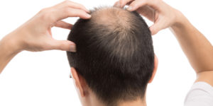 regrow lost hair in male