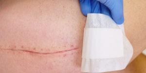 stitch mark