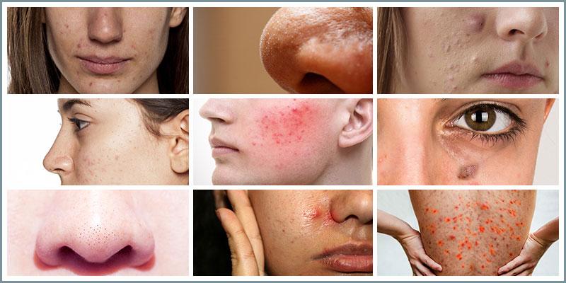 Acne Condition