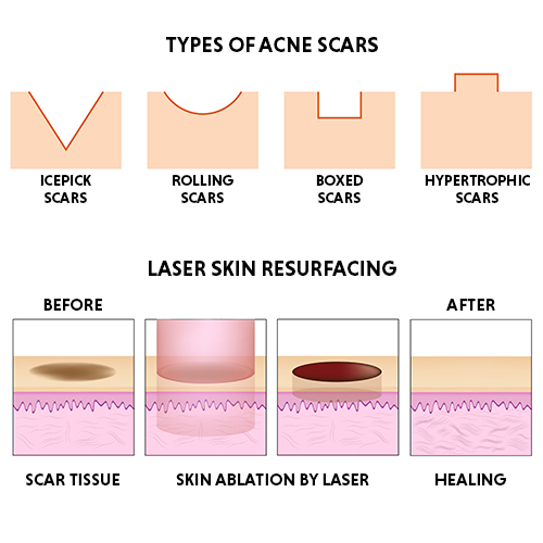 types of scars and treatments