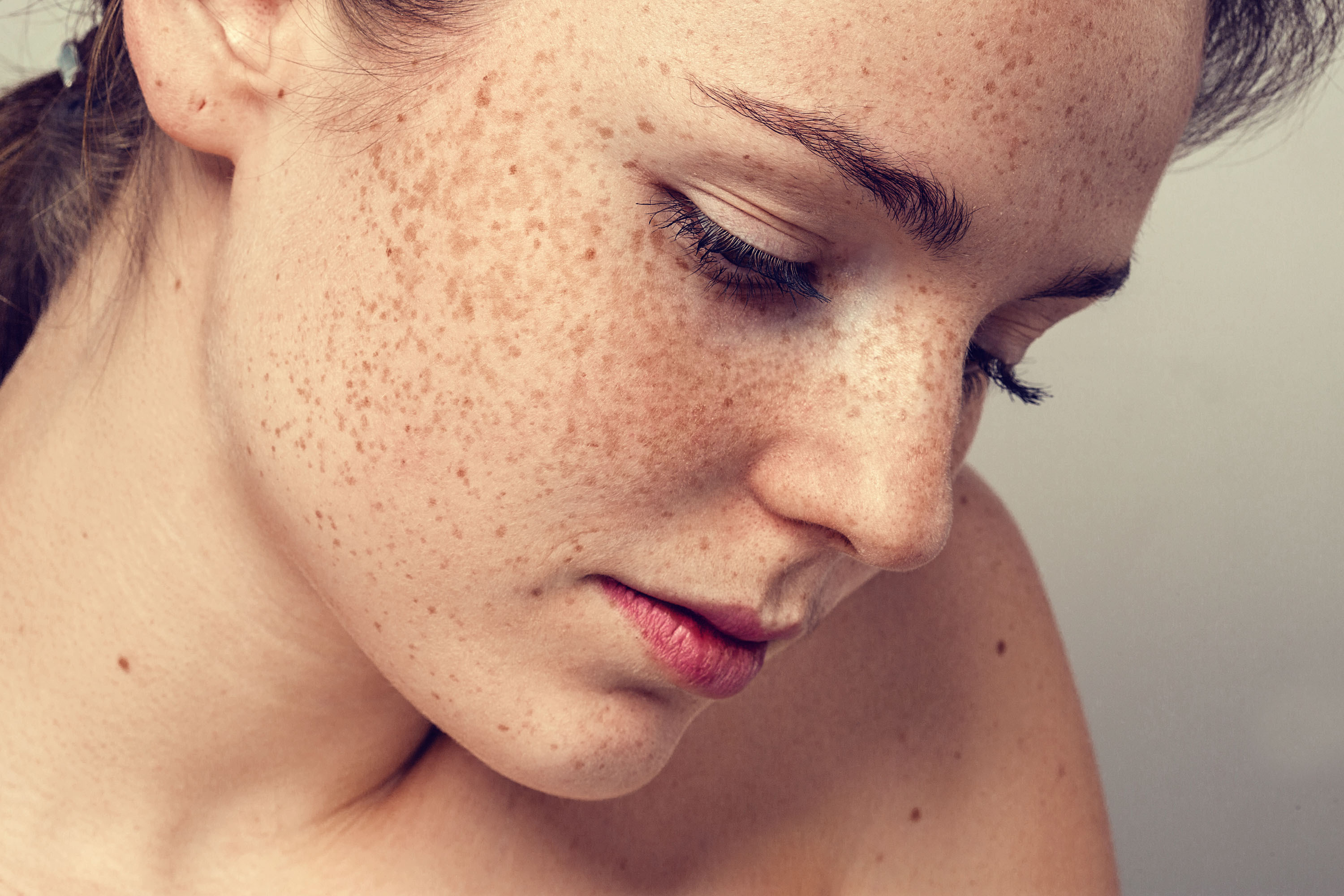 freckles treatment